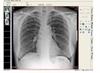 安健DR(数字X光机)图像数字化处理系统软件