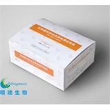 前列腺特异性抗原PSA检测试剂盒