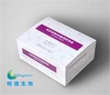 免疫球蛋白E检测试剂盒