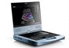 Acclarix AX8便携式全数字彩色超声诊断系统
