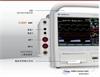 韩国美迪安纳D500型除颤器监护仪